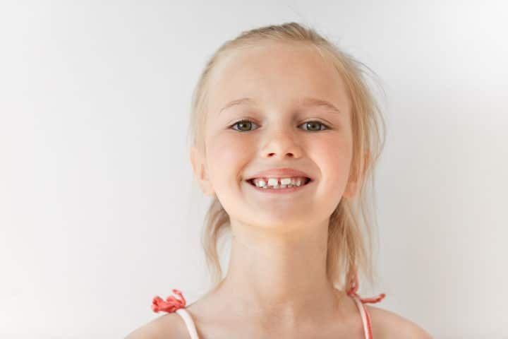 Penyebab Timbulnya Celah Pada Gigi